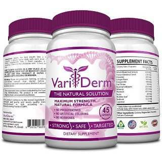 Variderm – Solution to Your Varicose Veins