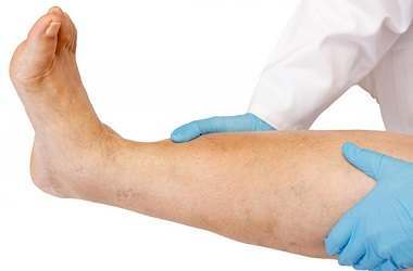 Causes and Treatments of Varicose Veins