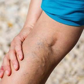 Varicose Veins – Causes, Prevention and Treatment