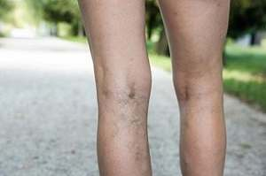 Foods that Help Prevent Spider Veins
